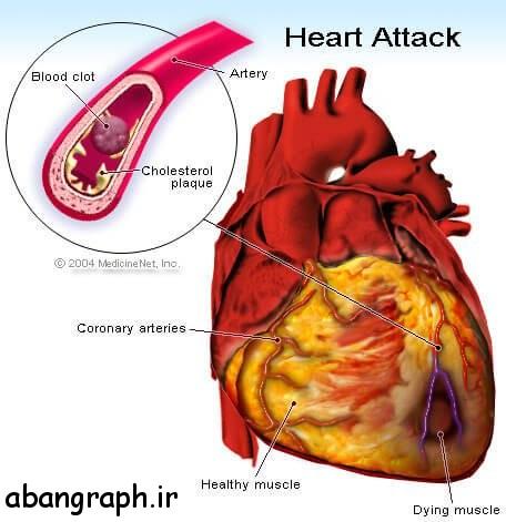 اگر شانه هایتان درد میکند باید مراقب حمله قلبی باشید! , مراقب, قلب, شانه, درد, حمله قلبی, حمله, باید