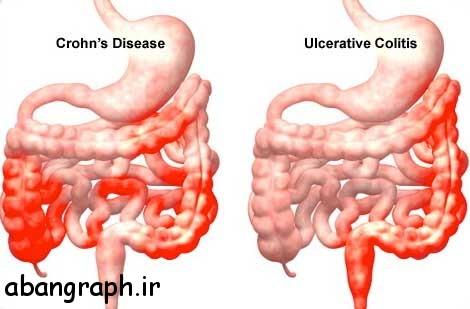علایم کولیت روده چیست؟ روش درمان آن , علائم, روش, روده, درمان